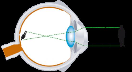 Operation Myopie Vision De Pres Laser Myopie Opration