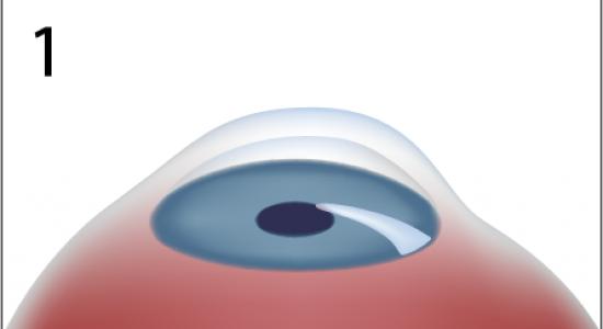 Le masque effectif pour la personne des taches de pigment